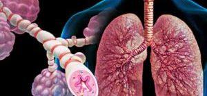 Анатомия болезни легких