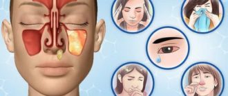 Реакция на аллерген