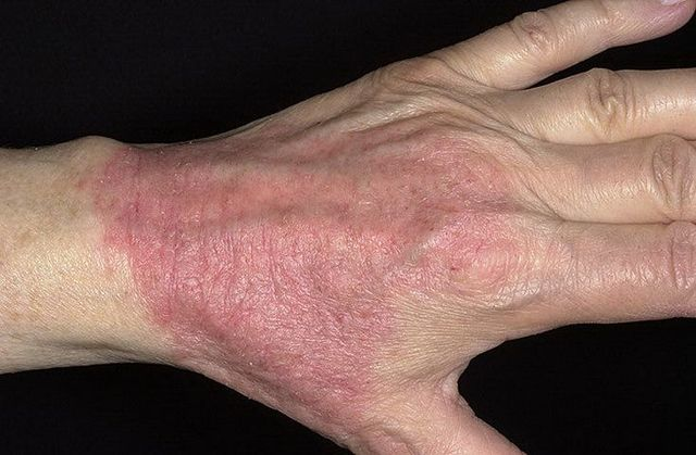 Обострение атопического дерматита