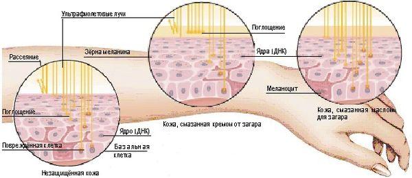 Влияние ультрафиолета на кожу