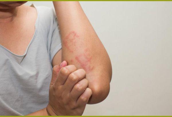 Женщина чешет сыпь на руке