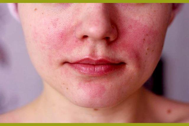 Аллергия на сигареты