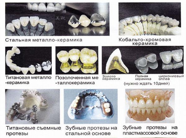 Примеры металлических протезов