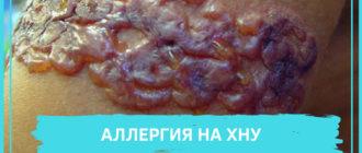 алергия на хну