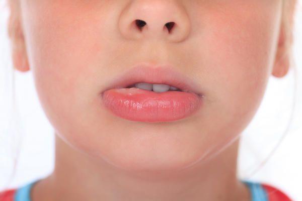 опухшая губа