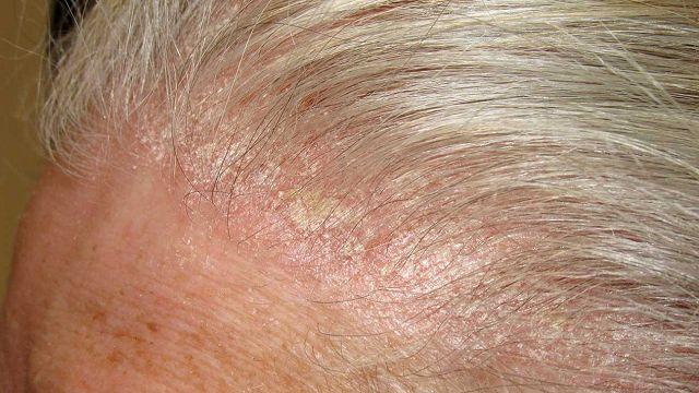 шелушение кожи на голове