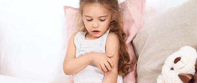 девочка чешет руку