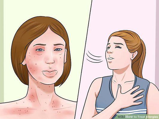 девушки с приступами аллергии