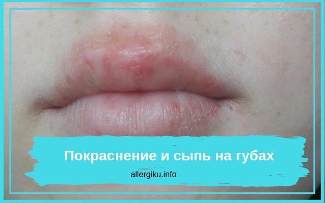 Если появилось покраснение и сыпь на губах