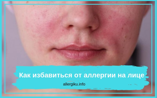 Как избавиться от раздражения на лице