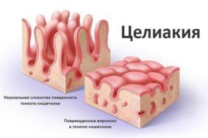 нарушение слизистой тонкого кишечника