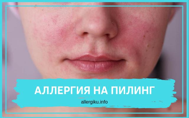 аллергия на пилинг