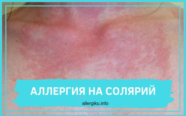 аллергия на солярий