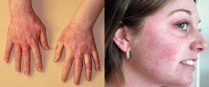 аллергическая сыпь на руках и лице