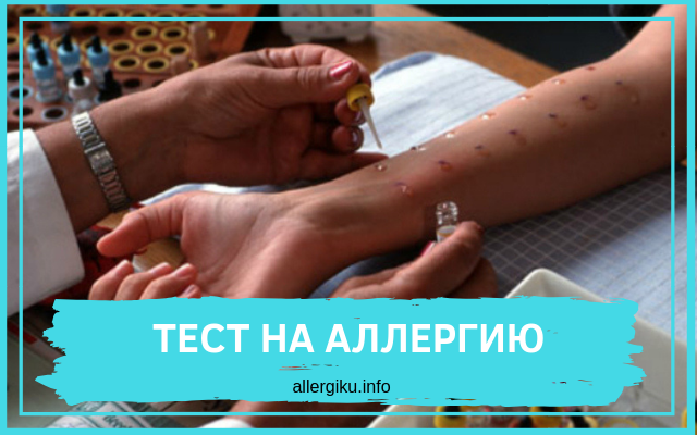 аллерго-тесты